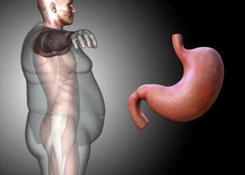 παχυσαρκία πεπτικό σύστημα